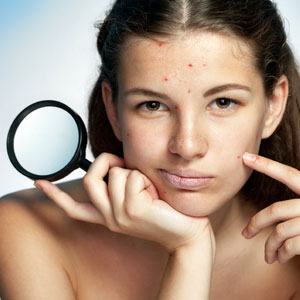 Help Me Get Rid Of My Hormonal Acne