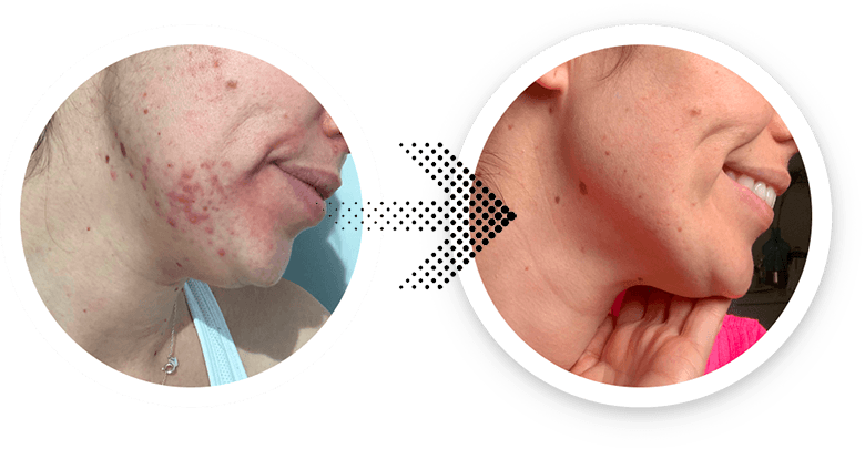 chin hormonal acne before and after