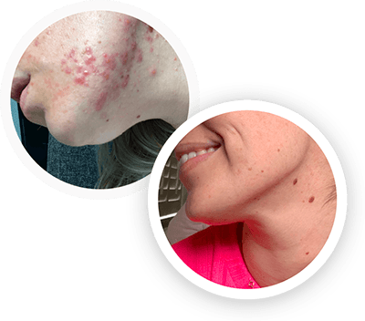 hormonal acne before and after image 1
