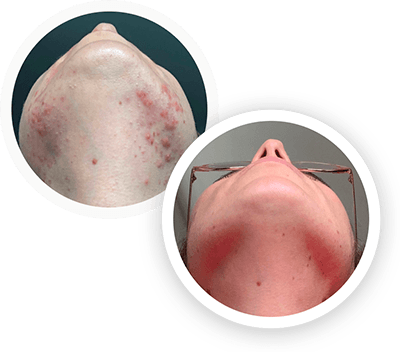 hormonal acne before and after image 2