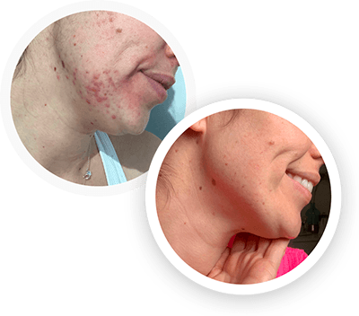 hormonal acne before and after image 3